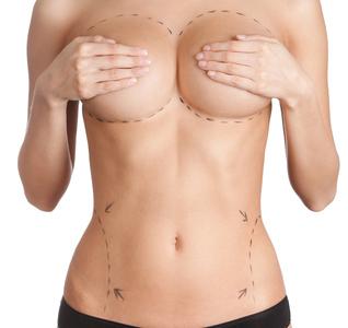 reconstruction mammaire Vancanneyt Chirurgie plastique