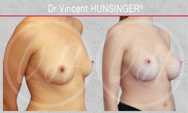Augmentation mammaire pour homme ou femme