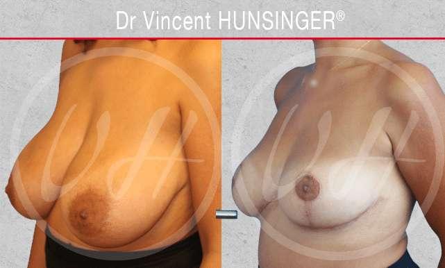 Augmentation mammaire pour transgenres