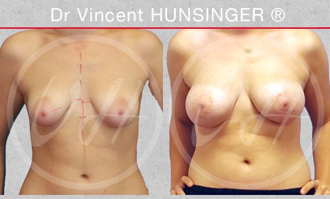 seins tubéreux implant mammaire malformation