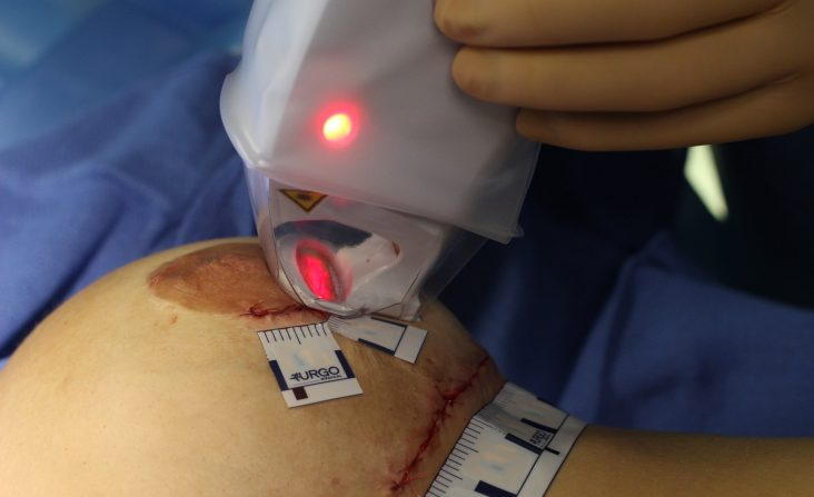 laser urgotouch cicatrice chirurgie esthetique