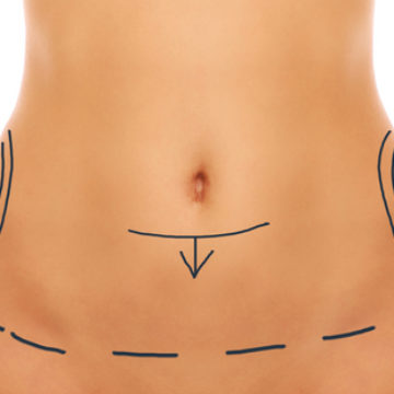 Abdominoplastie                                        lifting du ventre