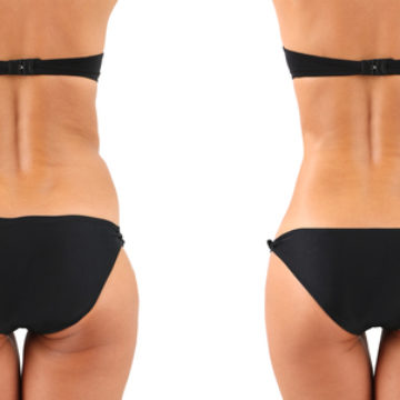 Liposuccion                                        ou lipoaspiration, Liposculpture