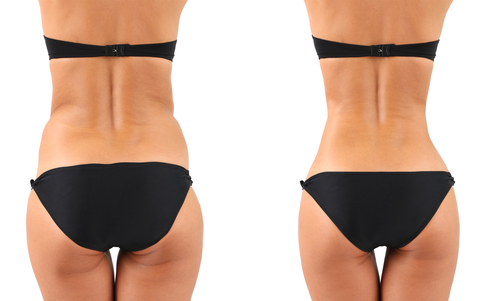 Plastic surgery. Liposuction. Slim body concept