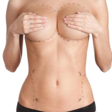 Lipofilling des seins ou augmentation mammaire sans implant