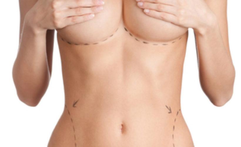 lipofilling ou lipomodelage a paris augmentation mammaire sans implant