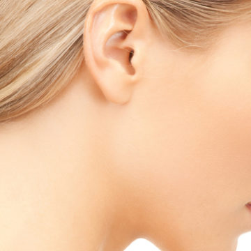 Otoplastie ou cure des oreilles décollées