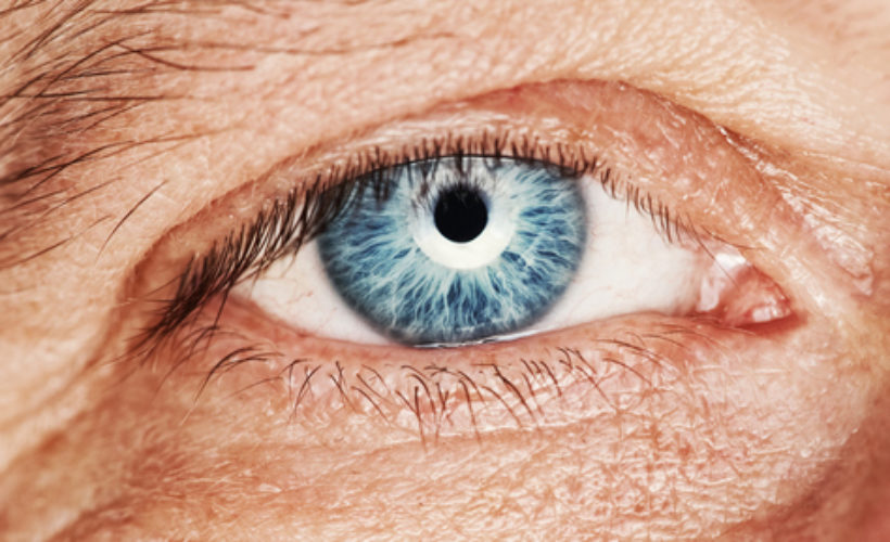 blepharoplastie a paris traitement des paupieres tombantes par le docteur hunsinger
