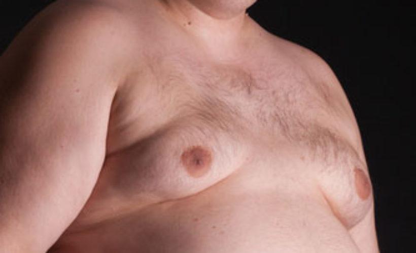 gynecomastie seins chez l'homme a paris