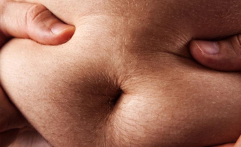 liposuccion pour homme par le dr hunsinger