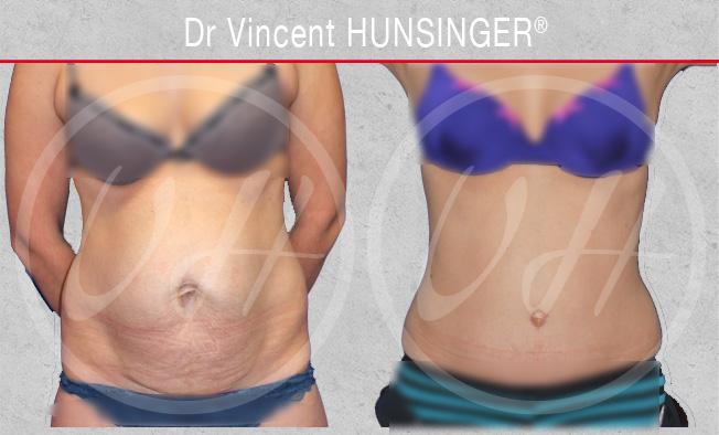 Lifting du ventre ou abdominoplastie : photo avant / après