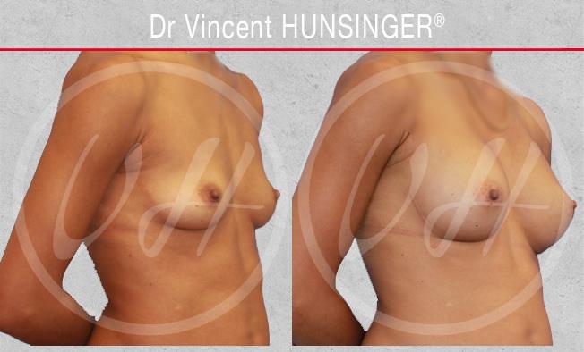 Augmentation mammaire par prothèse : photo avant / après