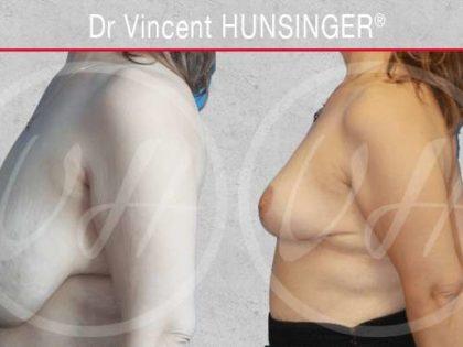 plastie mammaire de reduction par un chirurgien reconnu