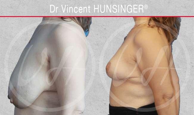 Réduction mammaire - correction hypertrophie mammaire : photo avant / après