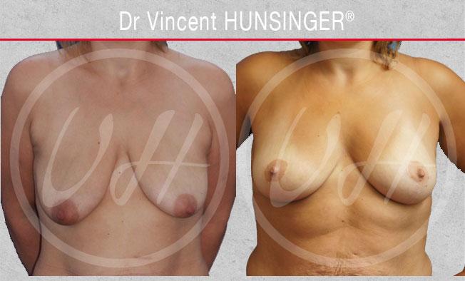 Lifting des seins ou cure de Ptose mammaire : photo avant / après