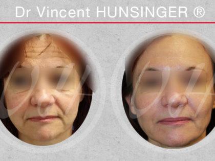 photo avant apres lipofilling du visage
