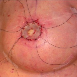 reconstruction mammaire greffe de peau areole