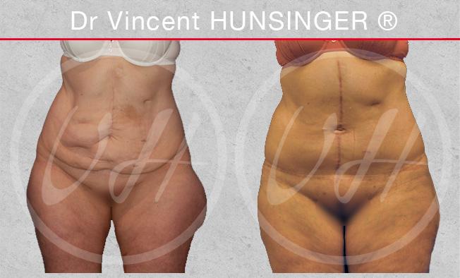 bodylift chirurgie esthetique paris hunsinger