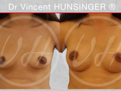 Avant apres Augmentation mammaire protheses 285