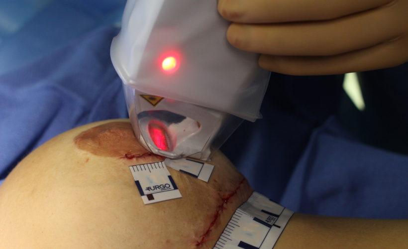 laser urgotouch cicatrice chirurgie esthetique