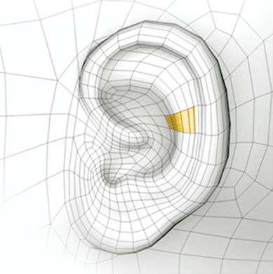 otoplastie earfold clip implant anesthesie locale