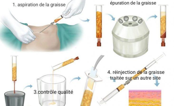 lipofilling injection graisse seins fesses visage chirurgie esthétique paris reconstruction