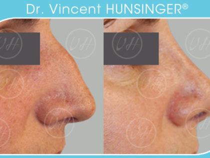rhinoplastie paris avant après chirurgie esthétique dr hunsinger vincent