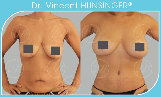 lifting seins ventre resultat photos 8 mois abdominoplastie mummy makeover laser urgo cicatrices