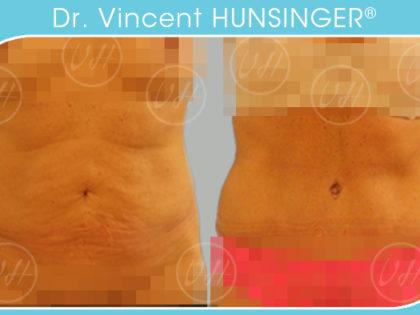 lifting du ventre abdominoplastie paris chirurgie esthetique ventre paris