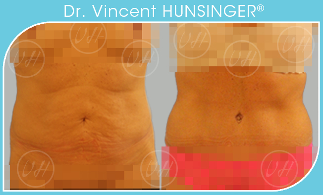 lifting du ventre abdominoplastie paris chirurgie esthetique ventre paris