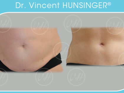abdominoplastie lifting ventre plat resultat photo avant apres chirurgien esthetique paris