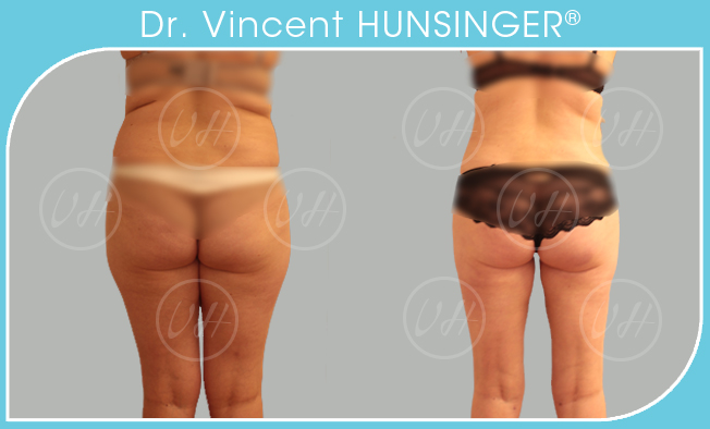 mega liposuccion paris chirurgien esthetique amaigrissement cuisses culotte de cheval