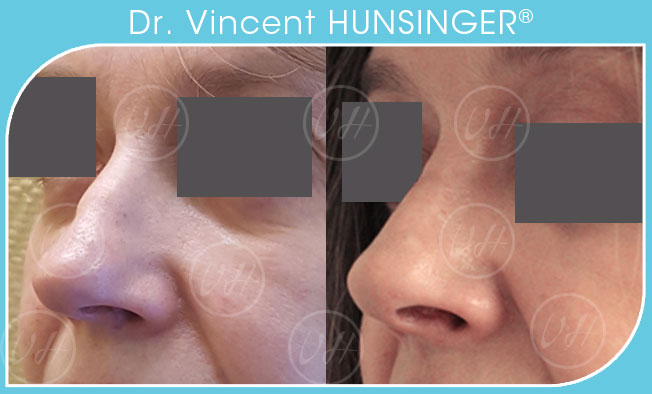rhinoplastie paris esthetique nez avant apres resultat photos chirurgien esthetique paris