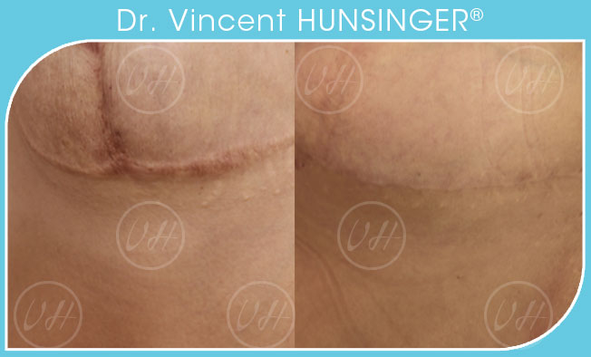 laser urgo paris amelioration cicatrices chirurgien esthetique paris