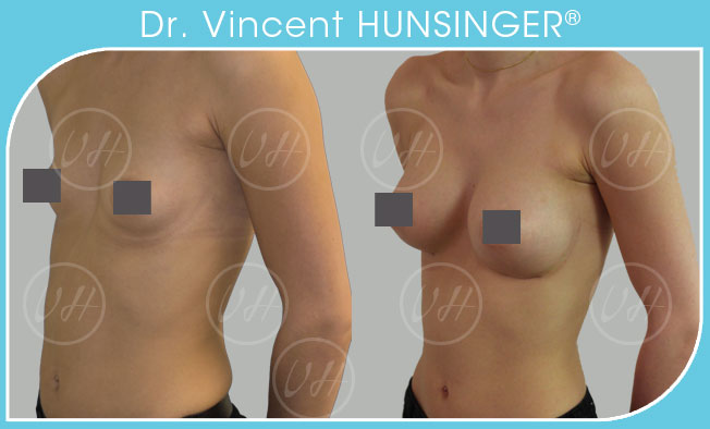 augmentation mammaire prothèse anatomique 370cc rétromusculaire chirurgien esthétique paris dr hunsinger