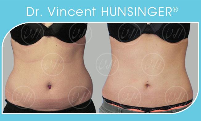 liposuccion chirurgie esthétique silhouette chirurgien esthétique paris dr hunsinger face