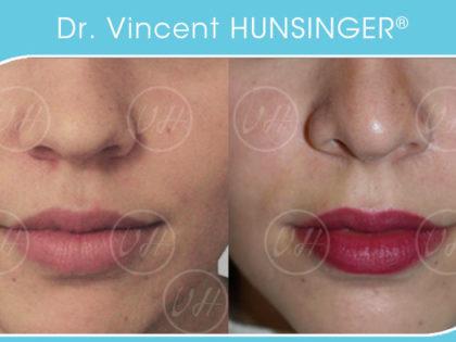 rhinoplastie de pointe voie fermée paris chirurgien esthétique dr hunsinger