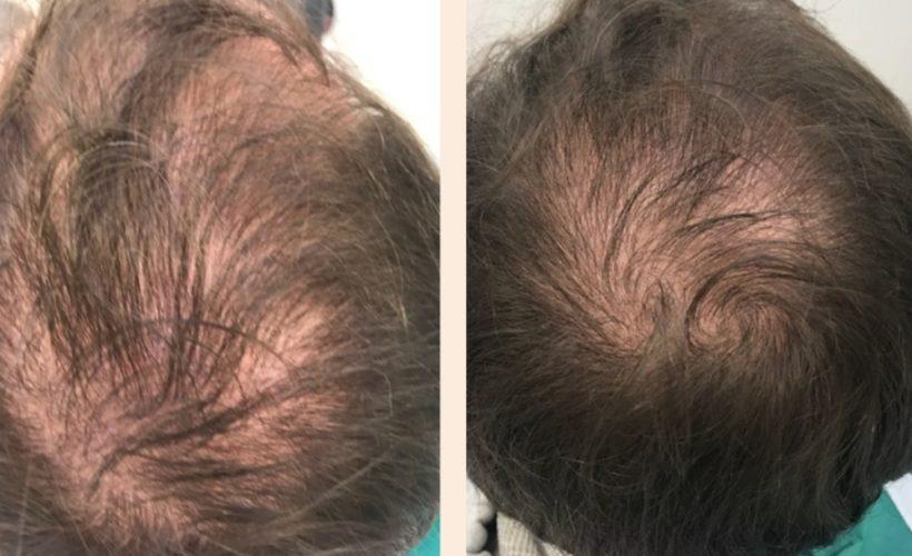 chute des cheveux alopecie paris rigenera cellules souche avant après chirrugien esthétique
