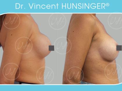 changement prothèses mammaires coque chirurgien seins paris dr vincent hunsinger