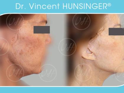 minilifting visage cou avant après spécialiste visage