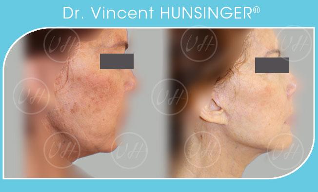 minilifting visage cou avant après spécialiste visage chirurgien esthétique paris