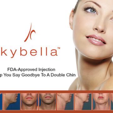Kybella® Belkyra® pour supprimer le double menton sans chirurgie
