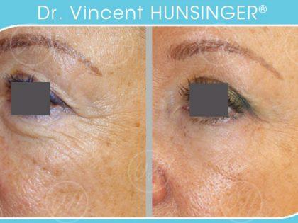 lifting des paupieres dr hunsinger chirurgien esthetique paris resultat avant apres