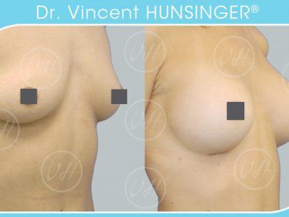 augmentation mammaire implant 310 dual plan dr hunsinger