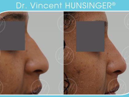 rhinoplastie medicale paris dr hunsinger chirurgien esthetique