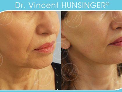 lifting visage hunsinger chirurgien esthetique paris