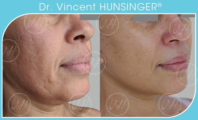 Minilifting du visage avant/après - Dr Hunsinger